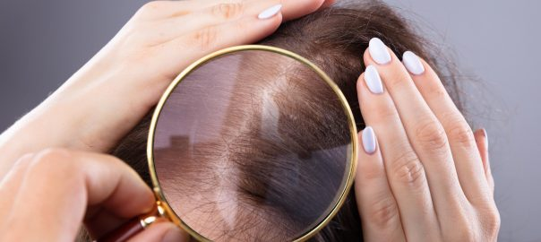 perdida cabello mujeres